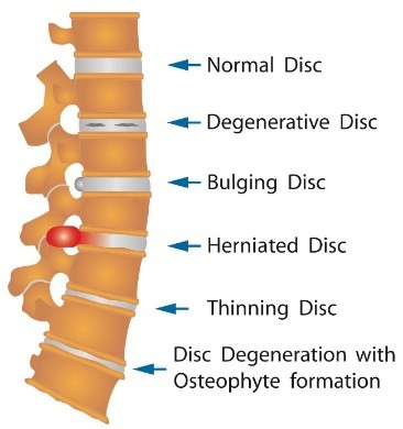 injection in herniated disk